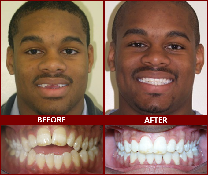 Smile Gallery, Dr. Derek Brown, Winning Smiles Orthodontics, Bowie, MD