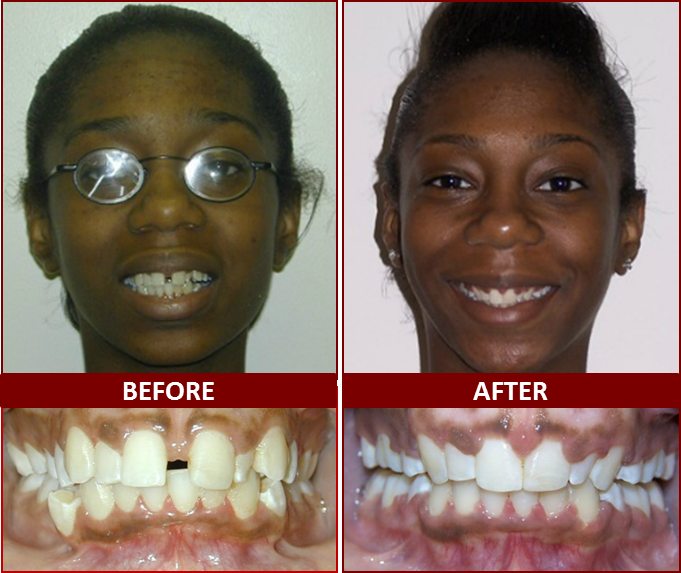 Smile Gallery, Dr. Derek Brown, Winning Smiles Orthodontics, Prince George's County, MD