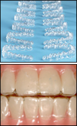 Invisalign, Dr. Derek Brown, Winning Smiles Orthodontics, Bowie and Hyattsville, MD